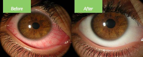Eye Dryness and Irritation before after winter साठी प्रतिमा परिणाम