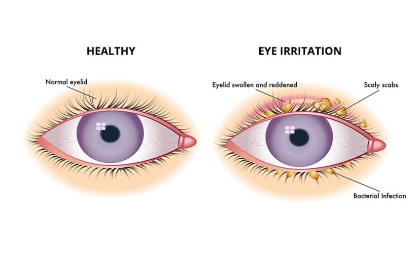 Solve your eye irritation problems