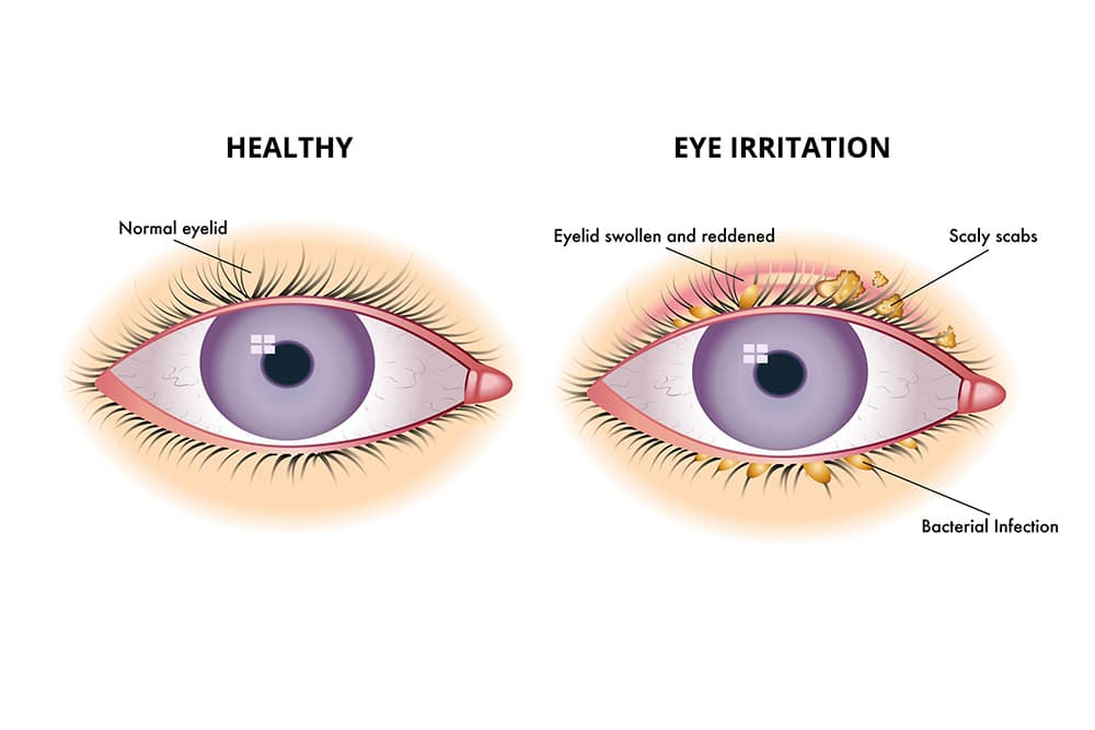 Solve your eye irritation problems
