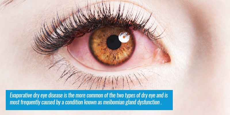 Evaporative dry eye disease is the more common of the two types of dry eye and is most frequently caused by a condition known as meibomian gland dysfunction.