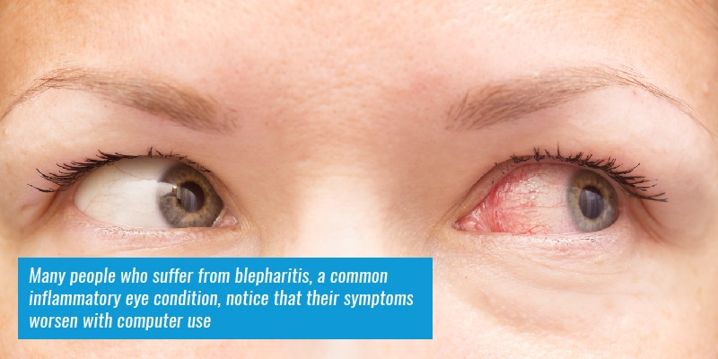 Many people who suffer from blepharitis, a common inflammatory eye condition, notice that their symptoms worsen with computer use.