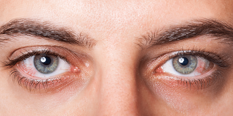 Natural Dry Eye Solutions Demystified