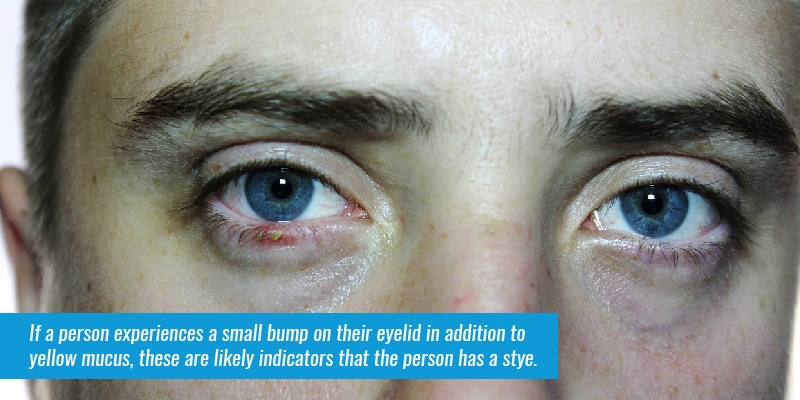 If a person experiences a small bump on their eyelid in addition to yellow mucus, these are likely indicators that the person has a stye.