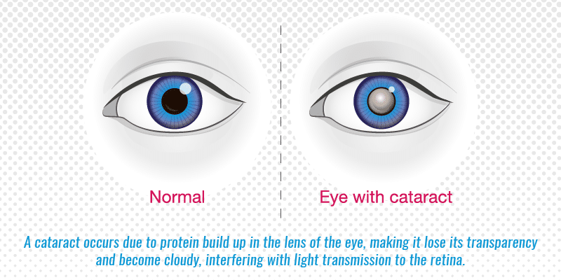 A cataract occurs due to protein build up in the lens of the eye, making it lose its transparency and become cloudy, interfering with light transmission to the retina.