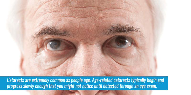 Cataracts are extremely common as people age. Age-related cataracts typically begin and progress slowly enough that you might not notice until detected through an eye exam.