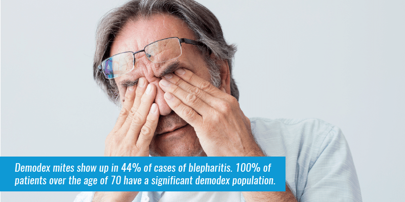 Demodex mites show up in 44% of cases of blepharitis. 100% of patients over the age of 70 have a significant demodex population. (Source).