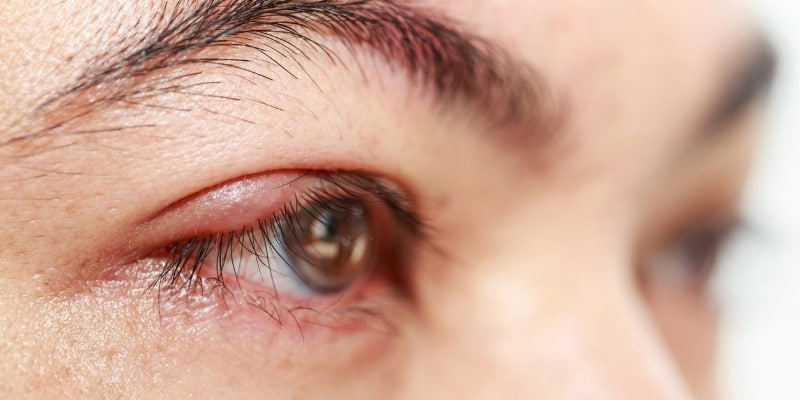 Posterior blepharitis: management, treatment and prevention
