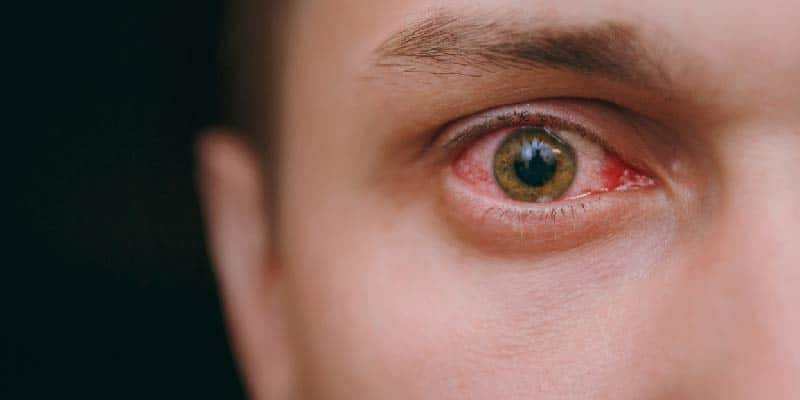 How Common Is Blepharitis