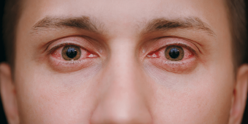 Why Allergies Make Your Eyes Red and Itchy